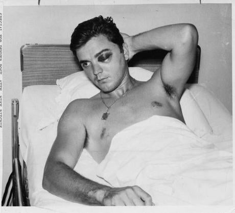 August 1967:  A glum Tony Conigliaro is seen in his hospital bed at Sancta Maria Hospital in Cambridge with a cracked cheekbone. This was the fifth time in Tony' Cs major league career that he has been hurt by pitched balls. He was hit during spring training when a John Wyatt fastball sailed during batting practice and suffered a separated shoulder. During his rookie season he suffered a hairline fracture of the left wrist after being hit by a Moe Drabowski pitch. A month later, he was out for six weeks when a Pedro Ramos pitch broke his right forearm. And in 1965, Wes Stock of the Kansas City A's put Tony out of the lineup for 12 days with a broken hand. The injury from the Jack Hamilton pitch would prove to be the most serious of all.