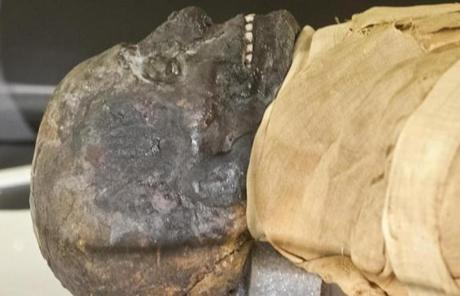 The 2,500-year-old mummy has adorned the hospital's Ether Dome and has been showcased in exhibits,