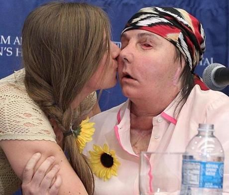 Boston, MA--5/1/2013--Marinda Righter (cq) kisses her mother's face of face transplant recipient Carmen Blandin Tarleton (cq). Tarleton speaks at a press conference at Brigham and Women's Hospital, with surgeon Dr. Bohdan Pomahac (cq), on Tuesday, May 1, 2013. She was attacked by her estranged husband on June 10, 2007, with a baseball bat and industrial-strength lye. She received the transplant in February, 2013. Also attending are Marinda Righter (cq), daughter of donor Cheryl Denelli Righter (cq), Brian Geraghty (cq), boyfriend of Marinda, and Sheldon Stein (cq), boyfriend of the recipient. Photos by Pat Greenhouse/Globe Staff Topic: 02face Reporter: XXX