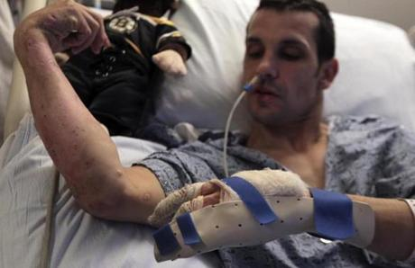 Marc Fucarile is the lone bombing victim still at Massachusetts General Hospital.