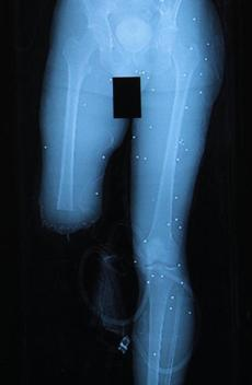An X-ray shows BB's in Marc Fucarile's lower body. His right leg was amputated.