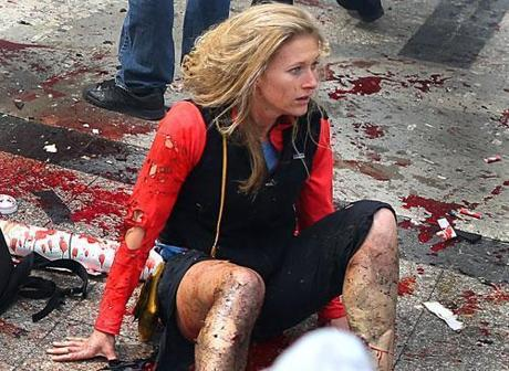 The image of a shocked and injured Nicole Gross came to symbolize the Marathon bombings.