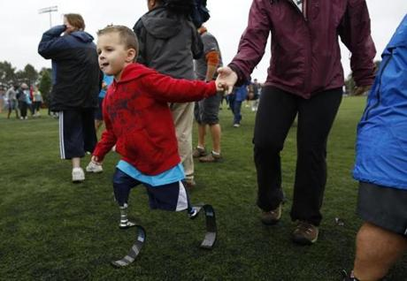 Braylon O'Neill, 4, was born without the tibia and fibula in both legs.