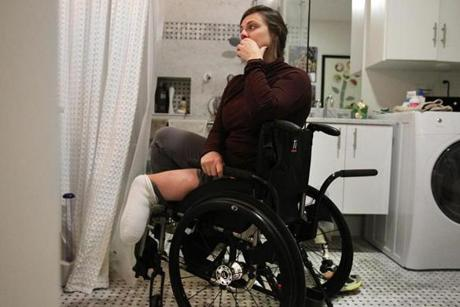 Jessica Kensky said having one leg helped her plant herself in the shower if she needed to pick something up. She feared losing that independence if she became a double amputee