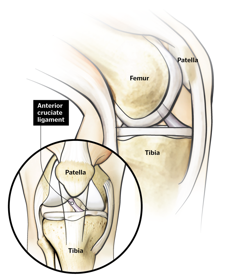 """anterior cruciate ligament injury Cruciate ligaments run diagonally inside the middle of the knee, forming an """"x"""", with the anterior cruciate ligament in the front part of the knee, and the posterior cruciate ligament in the back."""